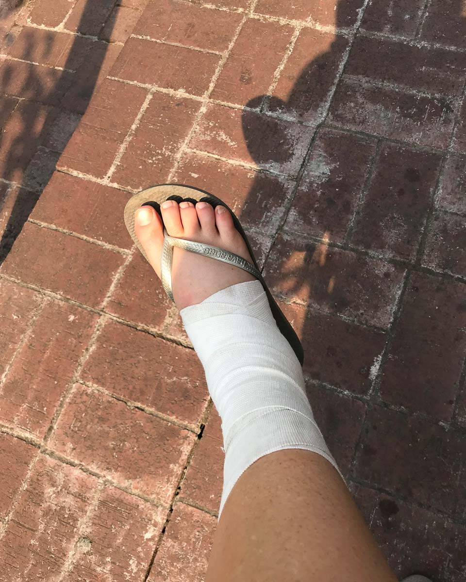 How to recover from a sprained ankle 5 trail and kale